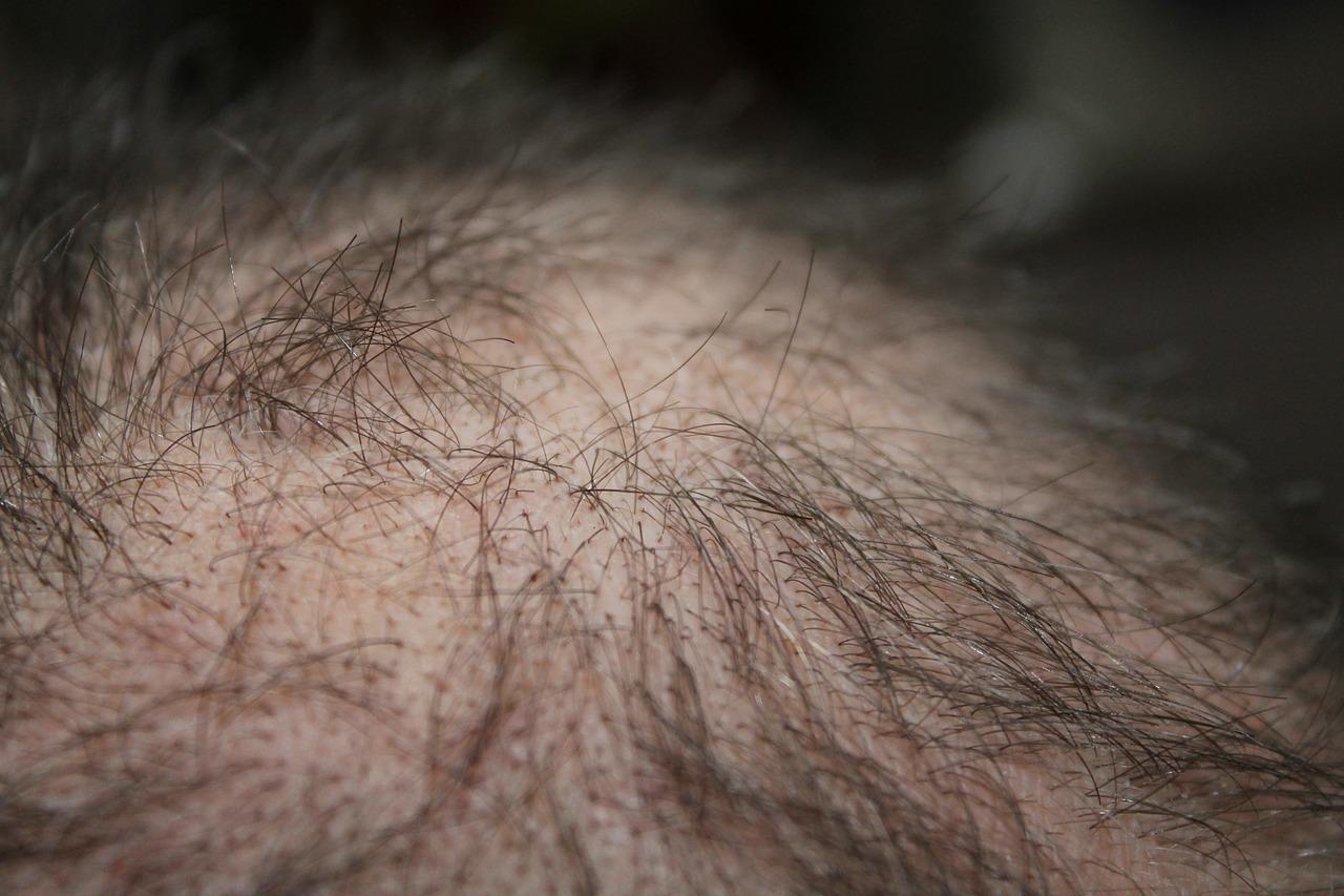 Gabinet trychologiczny Hair & Scalp Poznań oferuje leczenie chorób związanych z wypadaniem włosów.