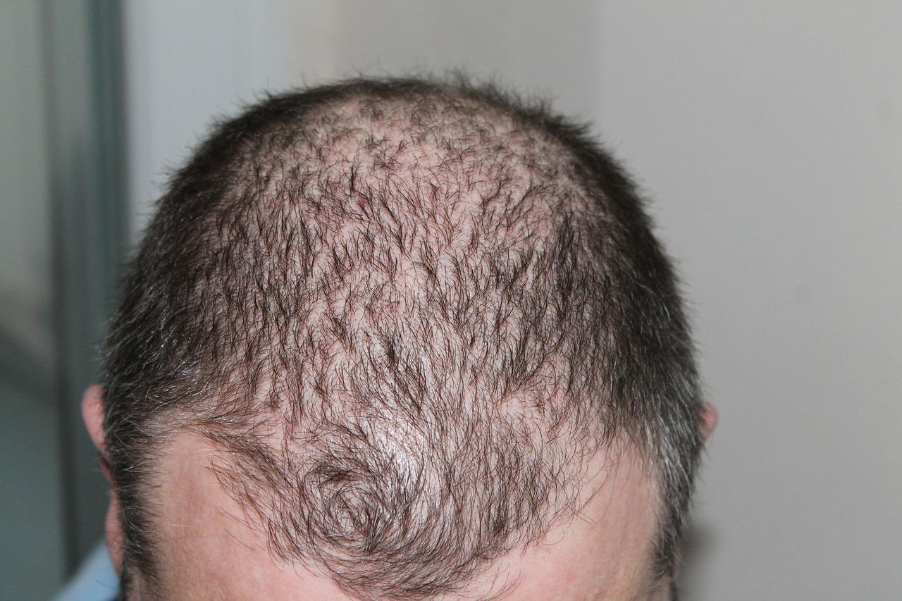 włosy, łysienie, trycholog Poznań